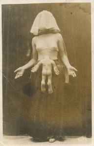 foire-aux-monstres-20-photos-vintages-veritables-freaks2
